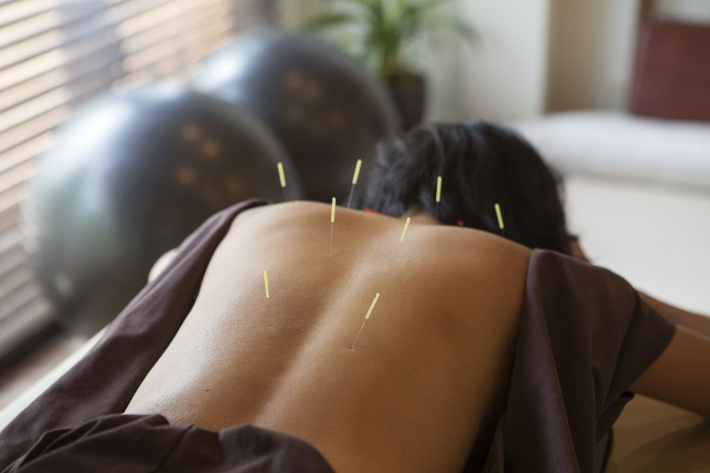 acupuncture treatment at alexandra health